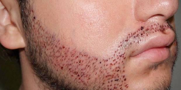 il veut savoir s il peut se greffer des poiles sur les joues afin d avoir une barbe. Black Bedroom Furniture Sets. Home Design Ideas